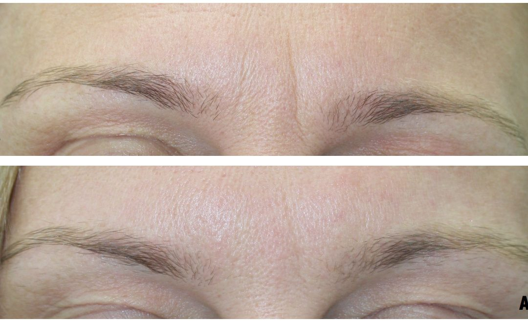 What happens during anti wrinkle treatment?