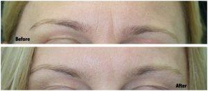 Anti wrinkle treatment | Newcastle | Honour Health | Power Brow