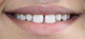 dentist newcastle   Honour Health