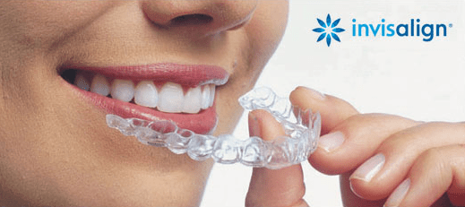 smiling lady holding invisalign aligners