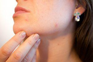 acne scar treatment Newcastle   Honour Health