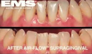 Airflow Newcastle | hygienist Newcastle | Honour Health