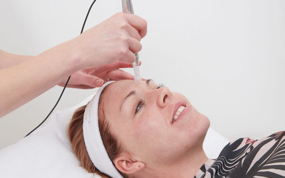 Spotlight on eDermastamp (EDS) microneedling treatment