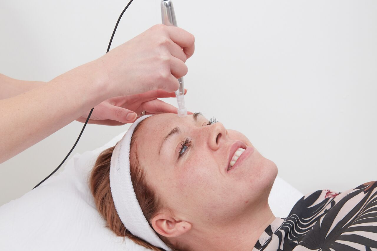 e-dermastamp micro needling treatment newcastle | Honour Health