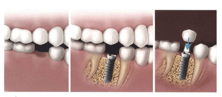 Spotlight on Dental Implants
