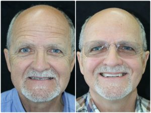 Dental implant treatment before and after photos