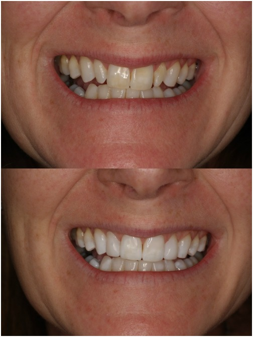composite veneers - a before and after image. This is a patient at Honour Health in Newcastle.