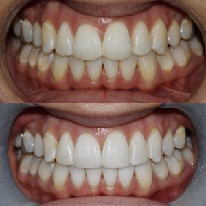 before and after photo of composite bonding at Honour Health in Newcastle
