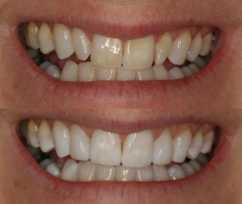 before and after images of composite veneers at Honour Health in Newcastle